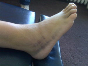 Ankle Sprain Treatment Denver