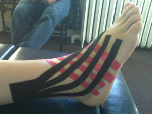 Kinesio Tape For Denver Ankle Sprain