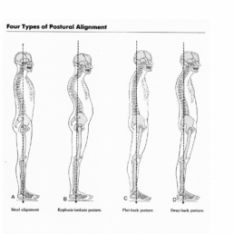 forward head posture causes neck pain