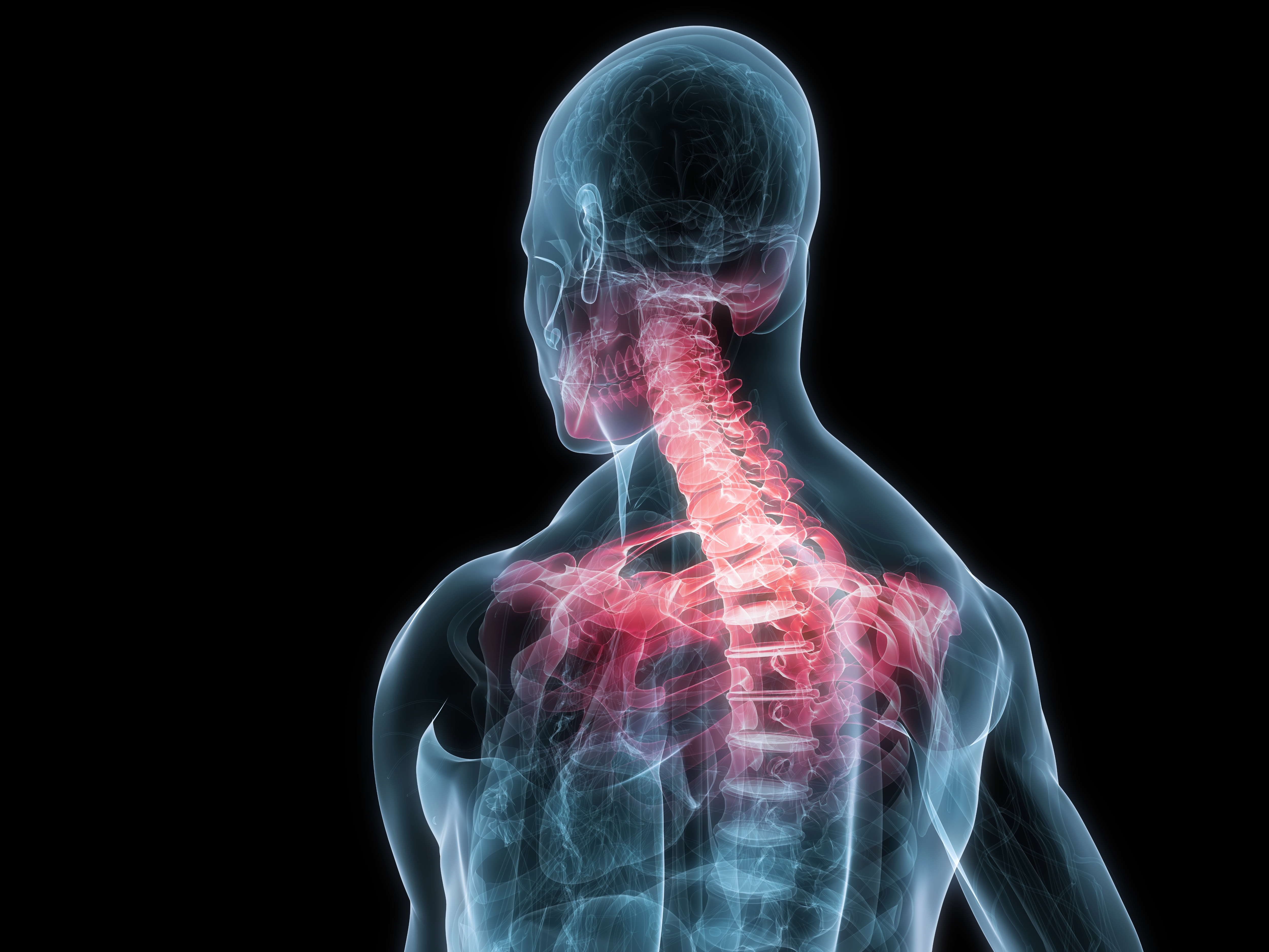 how to call in sick with back pain