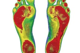 custom orthotics in denver co